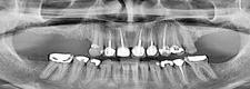 Ακτινολόγοι Οδοντίατροι